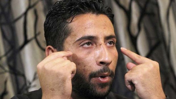 Warga Suriah, Ibrahim Jamal al-Jahamani, yang baru-baru ini dibebaskan dari penjara Suriah di mana dia menyaksikan seorang bocah 15 tahun disiksa sampai mati, berbicara dalam sebuah wawancara di perbatasan Suriah-Yordania, 7 Juli 2011. AP Photo/Raad Adayleh
